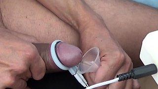 Insertion of Semen with Syringe into Uterus